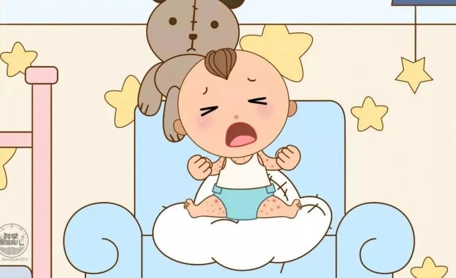【宝宝护理】湿疹怎么护理好得快?